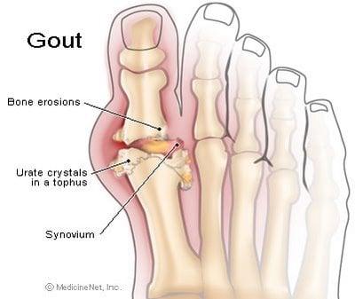 image of skeletal foot